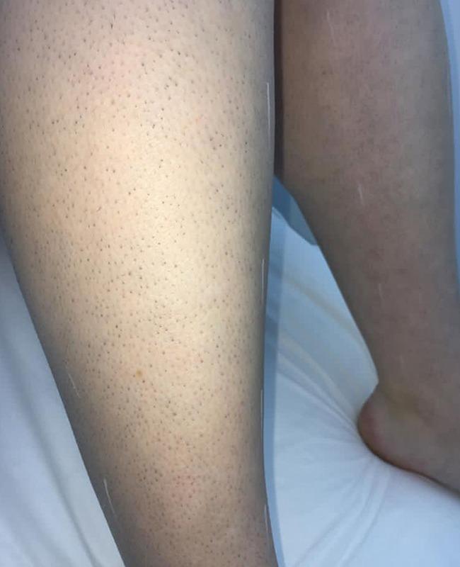 Whistles Laser Clinic - Before Leg