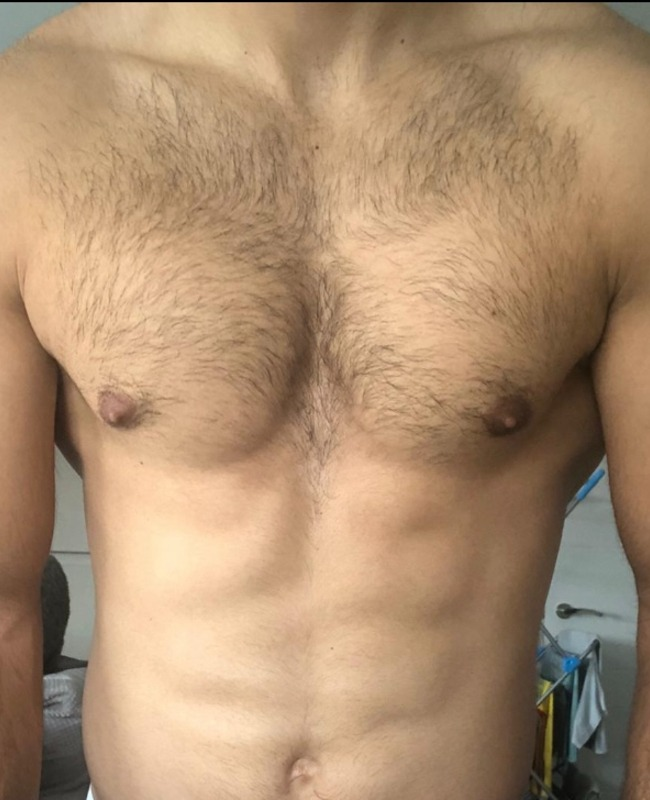 Whistles Laser Clinic - Before Chest
